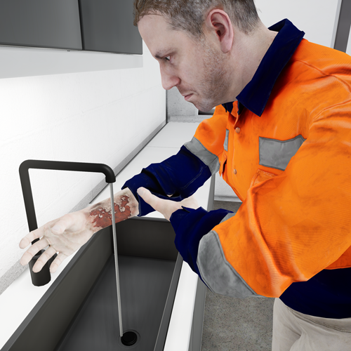 First aid Burn training in VR